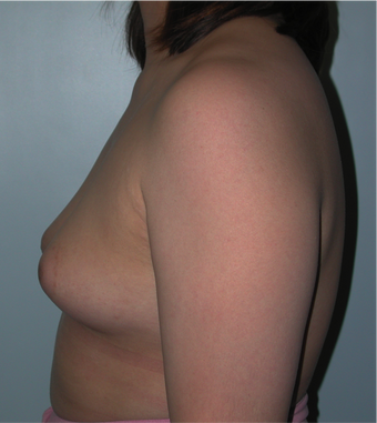 Young Female Undergoes Breast Augmentation as part of a Male to Female Transformation 1190950
