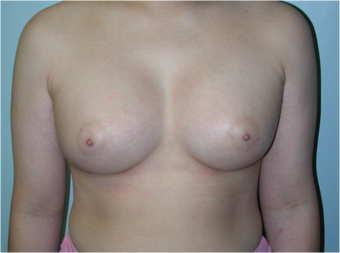 Young Female Undergoes Breast Augmentation as part of a Male to Female Transformation after 1190950