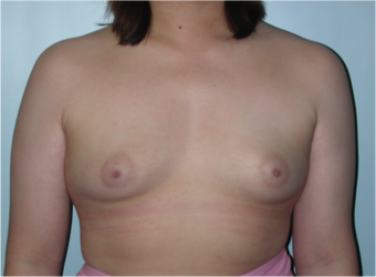 Young Female Undergoes Breast Augmentation as part of a Male to Female Transformation before 1190950