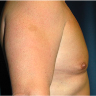 50 year old man treated with Male Breast Reduction after 3720893