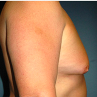 50 year old man treated with Male Breast Reduction before 3720893