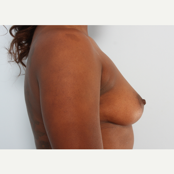 Breast Augmentation before 3340406