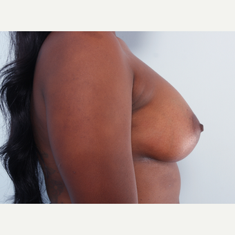 Breast Augmentation after 3340406