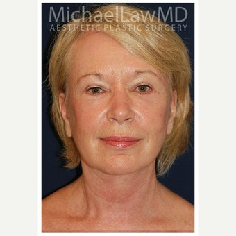 55-64 year old woman treated with SMAS Facelift after 1549135