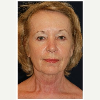 55-64 year old woman treated with SMAS Facelift before 1549135