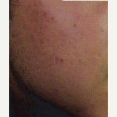 25-34 year old man treated with Acne Treatment