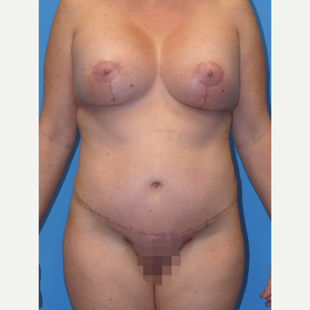 35-44 year old woman treated with Mommy Makeover after 3010188