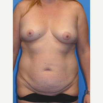 35-44 year old woman treated with Mommy Makeover before 3010188
