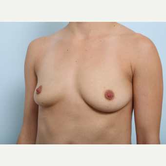 Breast Augmentation before 3345350