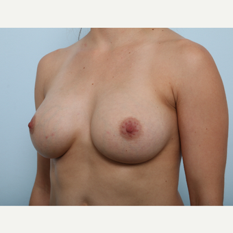 Breast Augmentation after 3345350