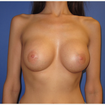 25-34 year old woman treated with Breast Augmentation (371cc)  after 2854397