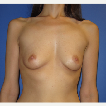 25-34 year old woman treated with Breast Augmentation (371cc)  before 2854397
