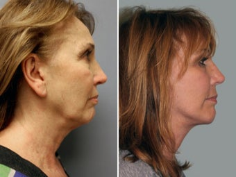65-74 year old woman treated with Facelift before 1844258