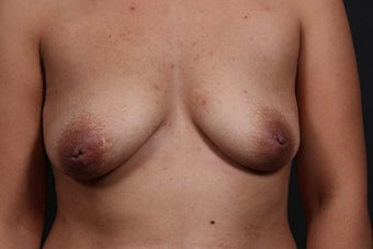 29 year old woman that underwent inverted nipple correction under local anesthesia