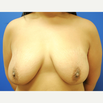 45-54 year old woman treated with Breast Lift with Implants before 3299834