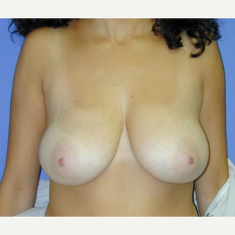 Breast Reduction before 3241622