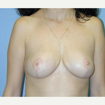 Breast Reduction after 3241622