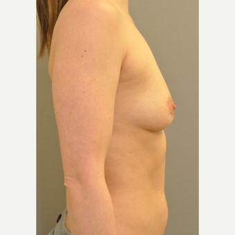 25-34 year old woman treated with Breast Augmentation before 3842510