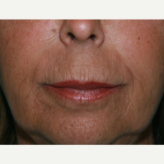 55-64 year old woman treated with Restylane Silk after 3345045