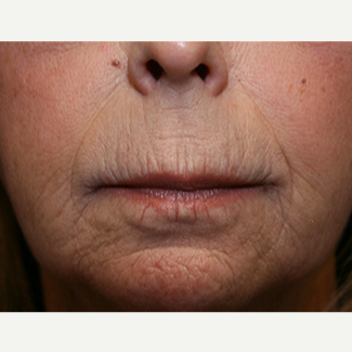 55-64 year old woman treated with Restylane Silk before 3345045