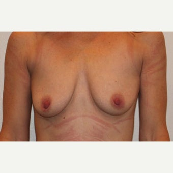 25-34 year old woman treated with Breast Augmentation before 1850907