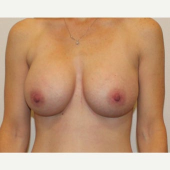 25-34 year old woman treated with Breast Augmentation after 1850907