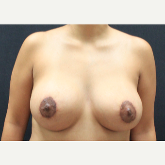 25-34 year old woman treated with Breast Lift with Implants after 3225336