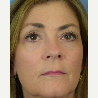 45-54 year old woman treated with Eyelid Surgery after 3644752