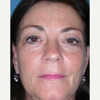 45-54 year old woman treated with Eyelid Surgery before 3644752