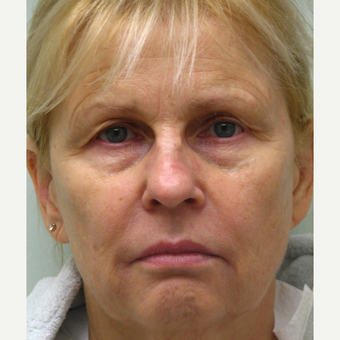 55-64 year old woman treated with Liquid Facelift and Lip Augmentation before 3243172