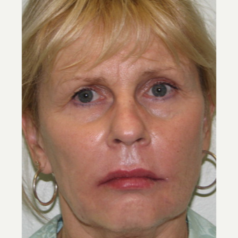 55-64 year old woman treated with Liquid Facelift and Lip Augmentation after 3243172