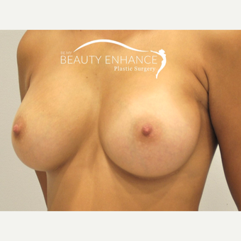 Breast Augmentation after 3377494