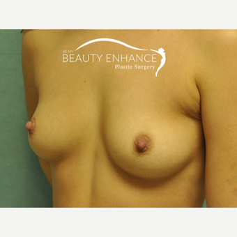 Breast Augmentation before 3377494