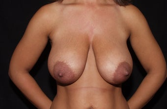 Breast Reduction before 1182842