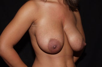 Breast Reduction 1182842
