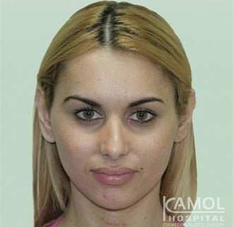 MTF Facial Feminization Surgery after 2704823