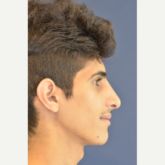 18-24 year old man treated with Rhinoplasty after 3487596