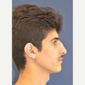 18-24 year old man treated with Rhinoplasty before 3487596