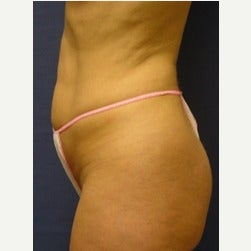 45-54 year old woman treated with Mini Tummy Tuck before 2066866