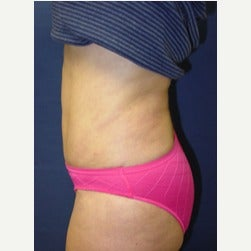 45-54 year old woman treated with Mini Tummy Tuck after 2066866