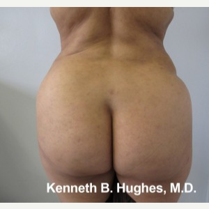 Liposuction after 3094227