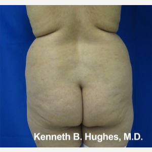 Liposuction before 3094227
