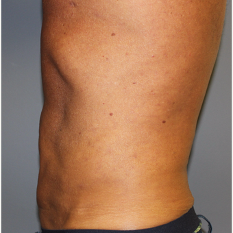 Liposuction with diastasis recti correction of abdomen after 3370053