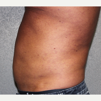 Liposuction with diastasis recti correction of abdomen before 3370053
