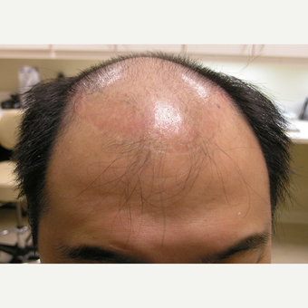 25-34 year old man treated with Hair Transplant before 3181264