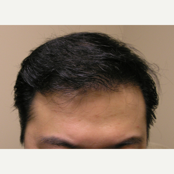 25-34 year old man treated with Hair Transplant after 3181264