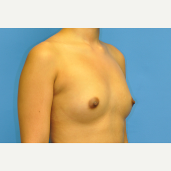 31 year old woman treated with Breast Augmentation using Ideal Implants before 3379718