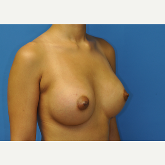 31 year old woman treated with Breast Augmentation using Ideal Implants after 3379718