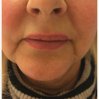 45-54 year old woman treated with Injectable Fillers before 3747528