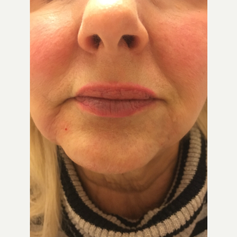 45-54 year old woman treated with Injectable Fillers after 3747528